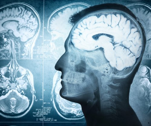 Commercial brain training doesn't improve decision making or cognitive function