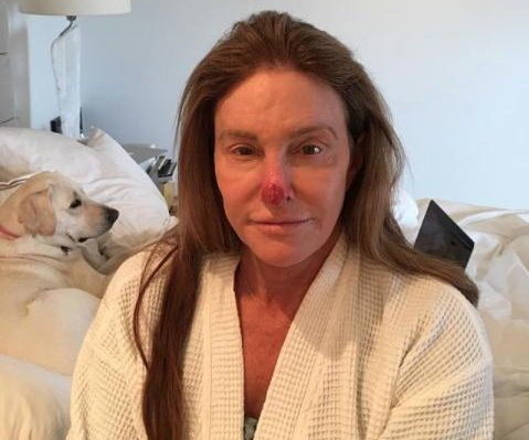 Caitlyn Jenner says she had 'sun damage' removed from nose