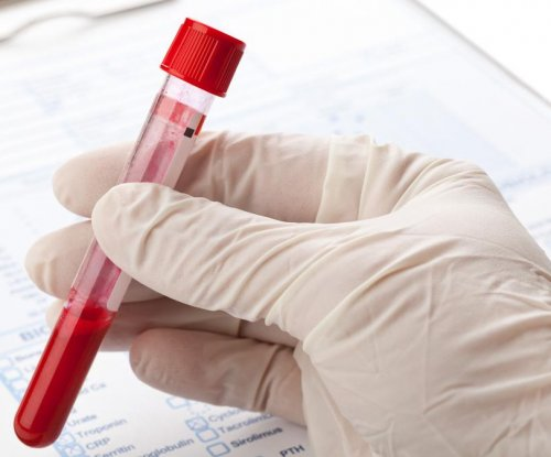 FDA: Start-up's cancer blood test may be harmful