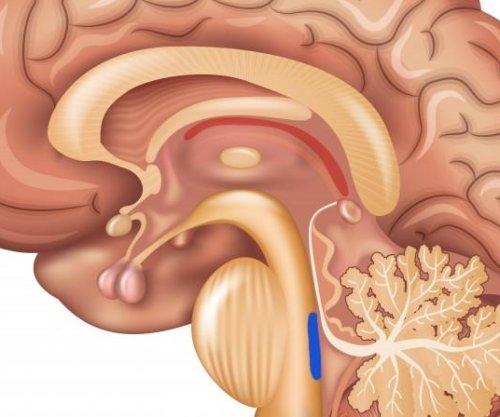 First brain region affected by Alzheimer's disease identified