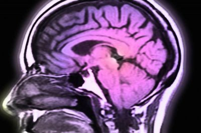 Drug may slow down brain shrinkage in multiple sclerosis, study says