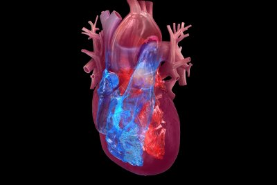 Stroke risk persists for months after heart attack, study says