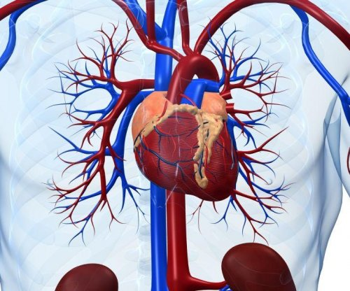 Alzheimer's plaques may also harm the heart