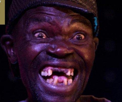 'Mr. Ugly' runner-up slams winner's lack of 'natural' ugliness
