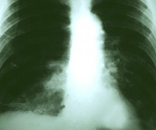 Lung cancer relapse may be predicted with blood-chromosome test