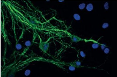 Scientists discover molecular mechanisms of Parkinson's disease