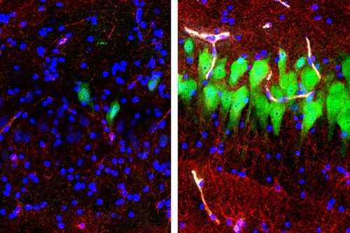 Researchers restore functions to pig brains hours after death