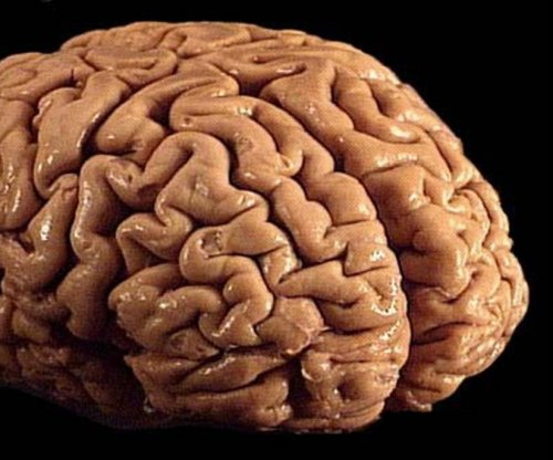 Scientists identify brain inflammation and CTE connection