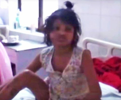 Girl found living with wild monkeys in India fears humans