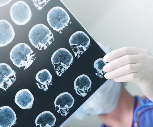 Study: Being unaware of memory loss may predict Alzheimer's
