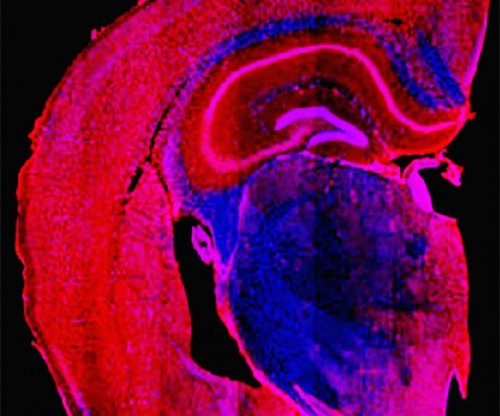 Designer compound may lead to new dementia treatment