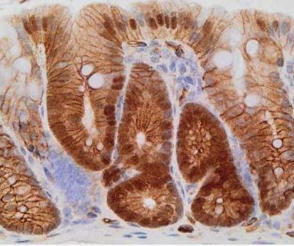 Antifungal drug eliminates dormant bowel cancer cells in mice