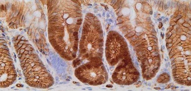 Antifungal Drug Eliminates Dormant Bowel Cancer Cells In Mice Upi Com