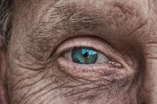Eye health may indicate risk for stroke, dementia, study says
