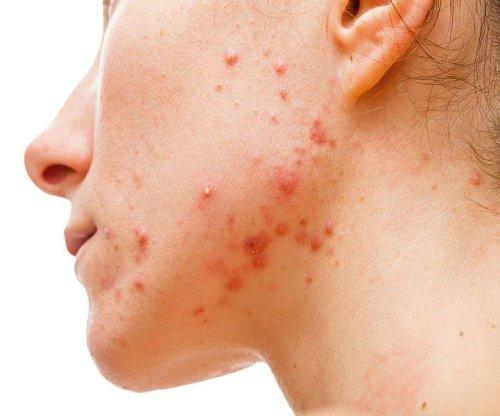 FDA OKs non-prescription use of acne drug