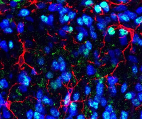 Chronic pain in mice relieved by blocking protein
