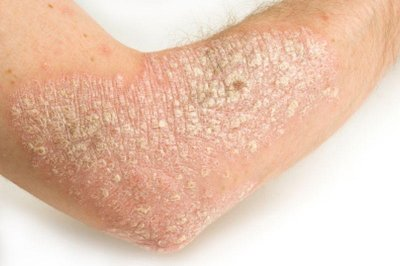 This suggests that shared genetic risk factors predispose to psoriasis 3