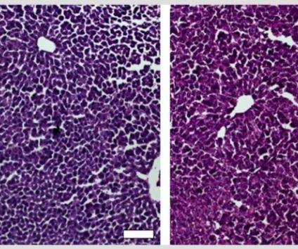 Gene engineering lowers cholesterol in mice