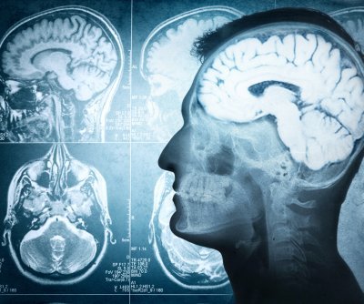Brain trauma recovery takes longer than thought, study shows