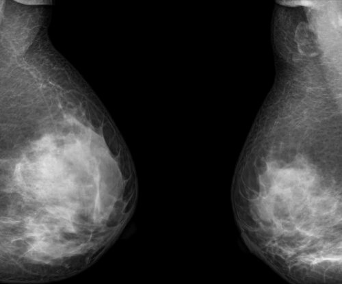 Double mastectomies for breast cancer tripled in last decade