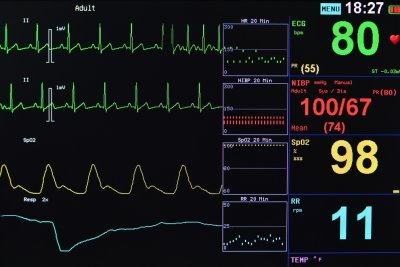Artificial intelligence may be able to pinpoint atrial fibrillation