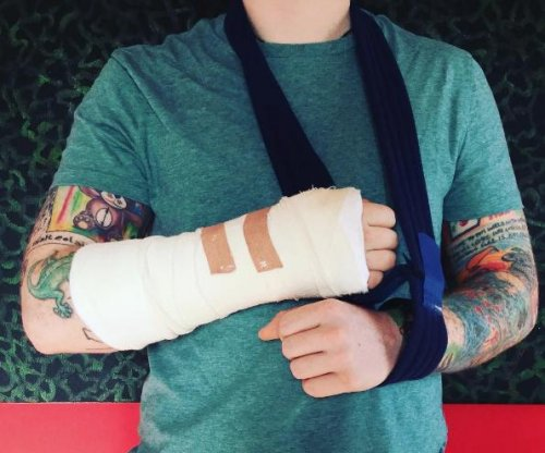 Ed Sheeran involved in bicycle accident, 'may affect' upcoming shows