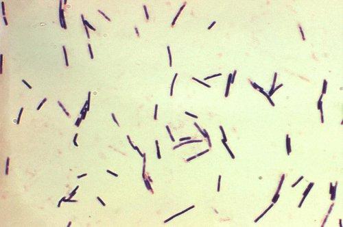Clostridium bacteria can cause multiple sclerosis-like brain damage