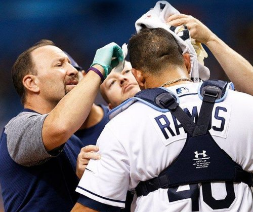 Tampa Bay Rays catcher Wilson Ramos needs staples after hit in head with bat