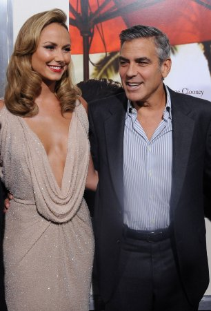 Clooney recovering after elbow surgery
