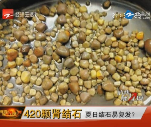Doctors in China remove 420 kidney stones from one patient