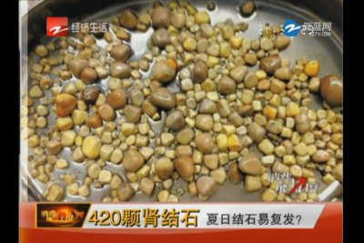 Watch: 420 stones removed from a single kidney - UPI.com