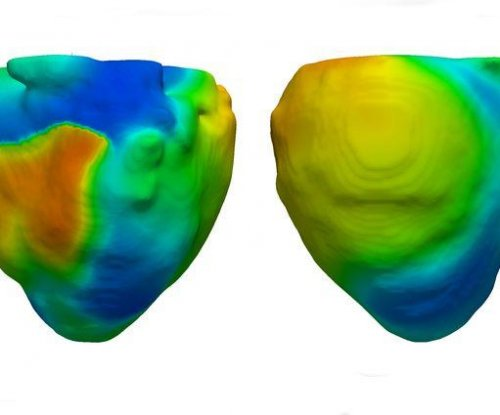 Virtual model of heart may aid heart failure treatment