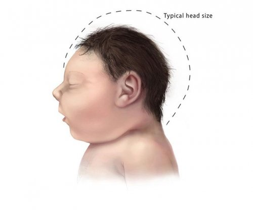 Study IDs 2 Zika virus proteins linked to microcephaly