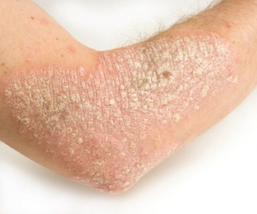 Whites more likely than others to seek psoriasis treatment
