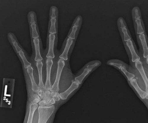 Early rheumatoid arthritis treatment may prevent rapid bone loss