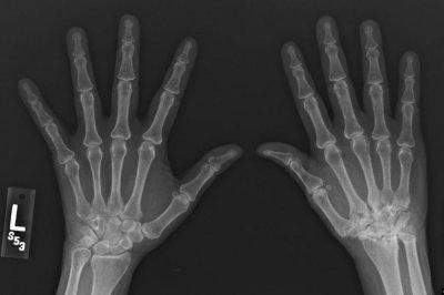 Early rheumatoid arthritis treatment may prevent rapid bone loss