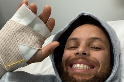 Warriors PG Stephen Curry suffers broken hand, posts photo of injury