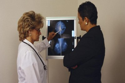 Cost of breast cancer chemo varies widely in U.S.
