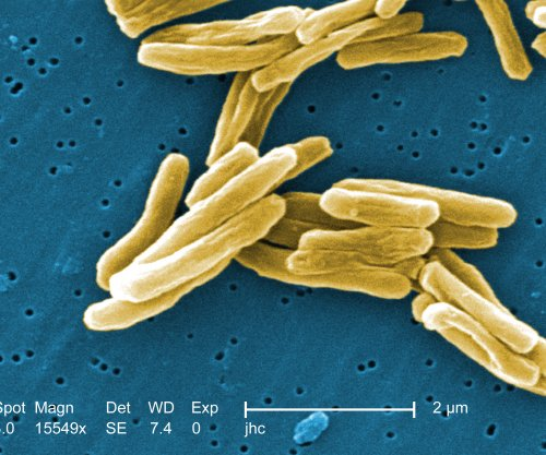 Blood test may streamline process of diagnosing, treating TB