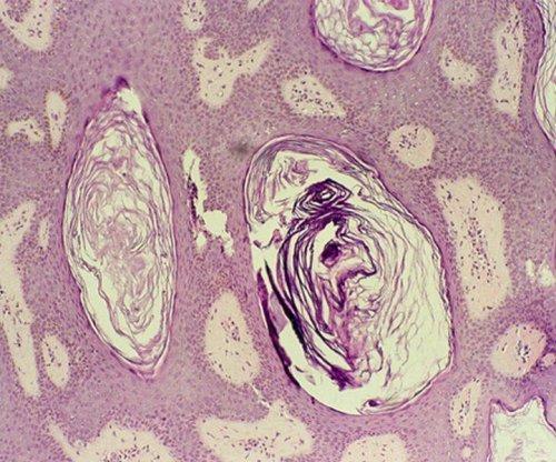 Zika kills vital nervous system cells in adult mice, study finds