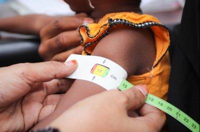 WFP: Yemen faces 'looming famine' in era of COVID-19, civil war