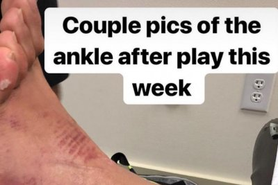 Tony Finau posts photos of 'kankle' after Masters