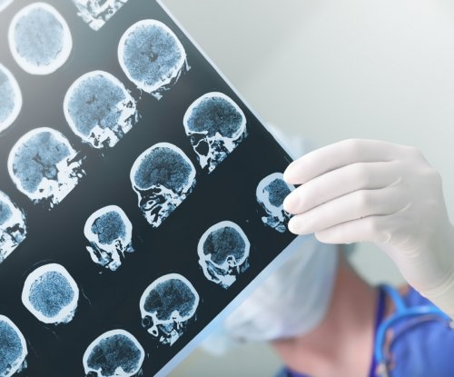 Possible new treatment for neuroinflammation in stroke