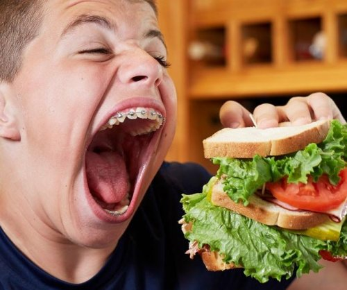 Minnesota teen has 3.67-inch mouth gape