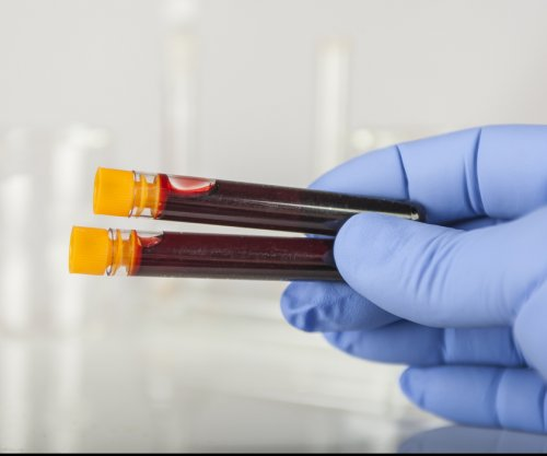 New blood test may be able to detect cancers earlier
