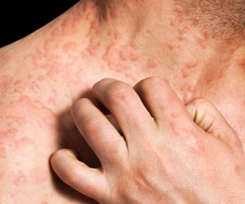 Bathing in water as effective against eczema as bleach solution