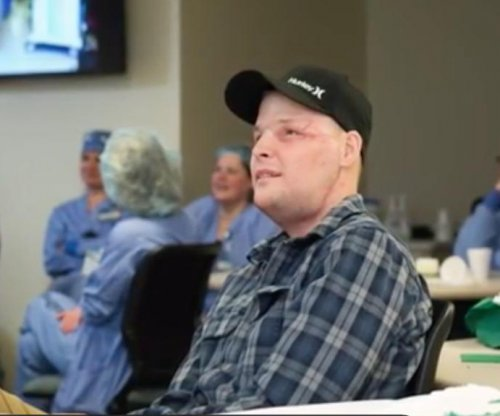 Man recovering from face transplant surgery pleased with result
