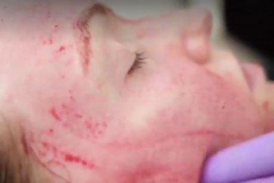 Unauthorized 'vampire facials' lead to HIV scare at Albuquerque spa
