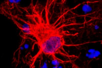 New study focuses on astrocytes in brain development