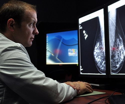 Program helps low-income women get mammograms, study shows